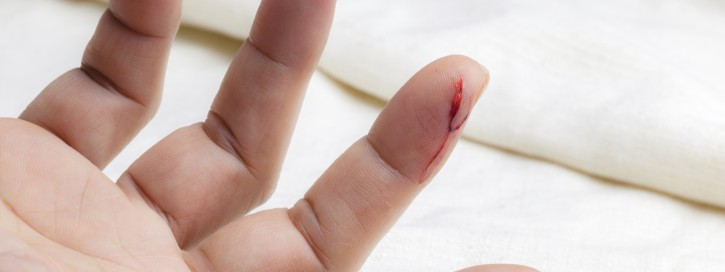 Injured finger