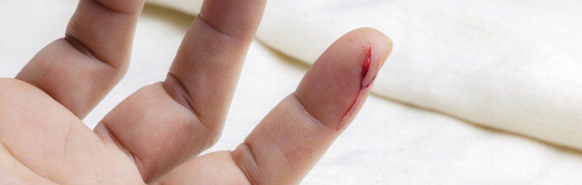 Schnittverletzung Hand