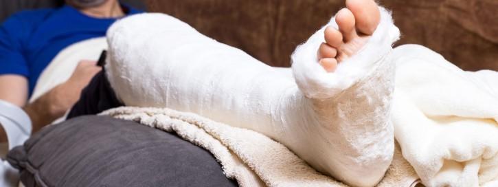 Mann liegt mit einem gebrochenen Fuß zuhause auf dem Sofa